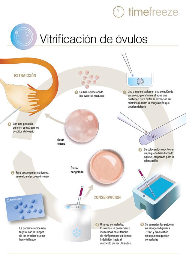 Vitrificación ESP 2 TF copia.ai